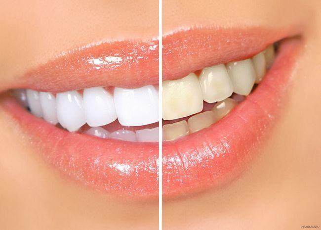 Як можна чистити зуби содою?