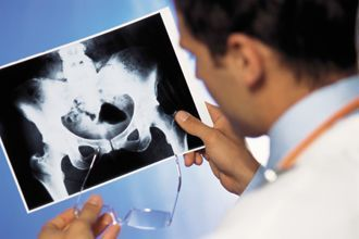 Як вибрати лікаря уролога?
